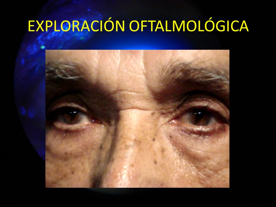 EXPLORACIÓN OFTALMOLÓGICA