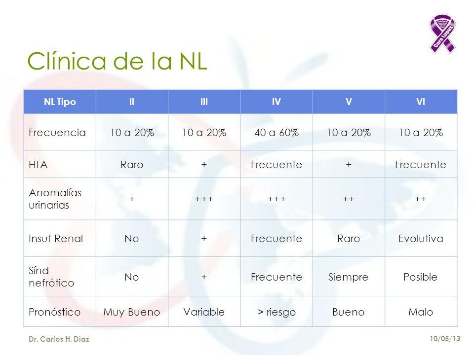 Clínica de la NL Frecuencia 10 a 20% 40 a 60% HTA Raro + Frecuente