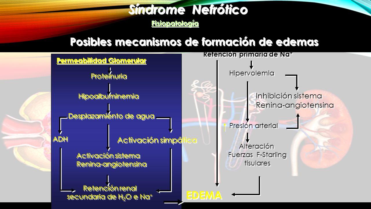 Síndrome Nefrótico Posibles mecanismos de formación de edemas EDEMA