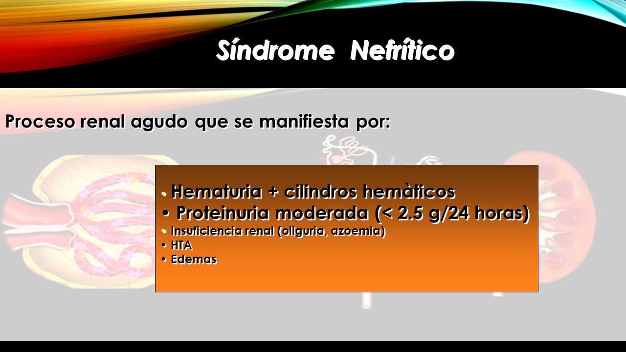 Síndrome Nefrítico Proceso renal agudo que se manifiesta por: