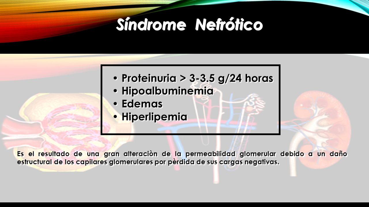 Síndrome Nefrótico Proteinuria > 3-3.5 g/24 horas Hipoalbuminemia