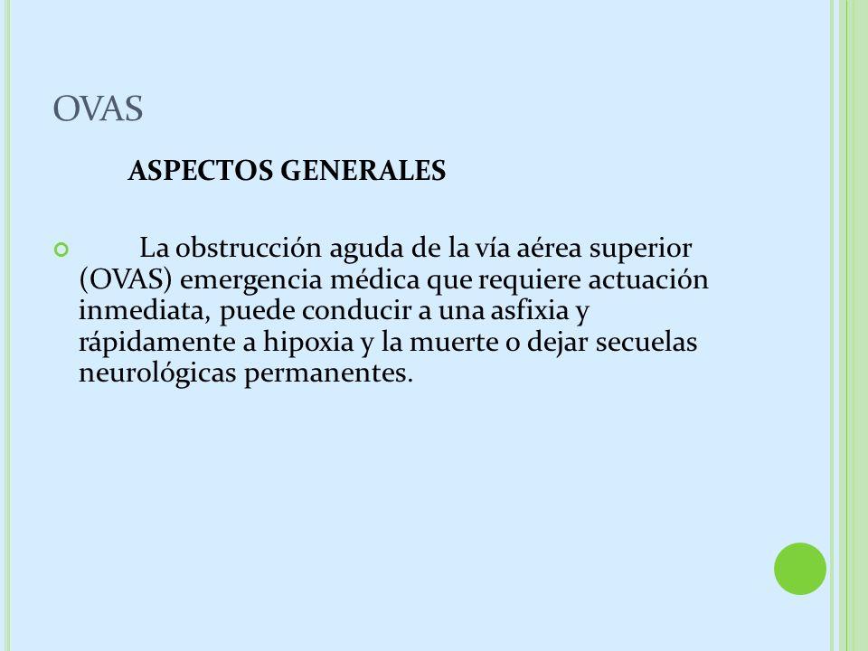 OVAS ASPECTOS GENERALES