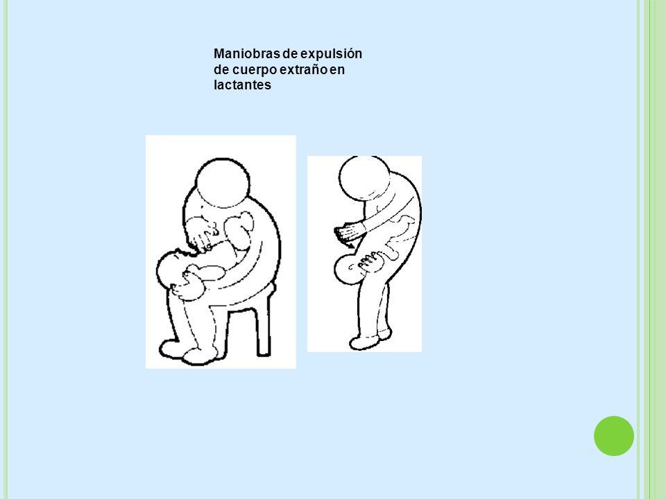 Maniobras de expulsión de cuerpo extraño en lactantes