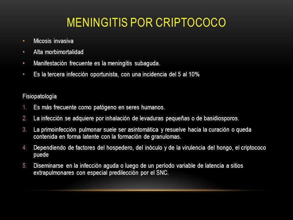 Meningitis por Criptococo