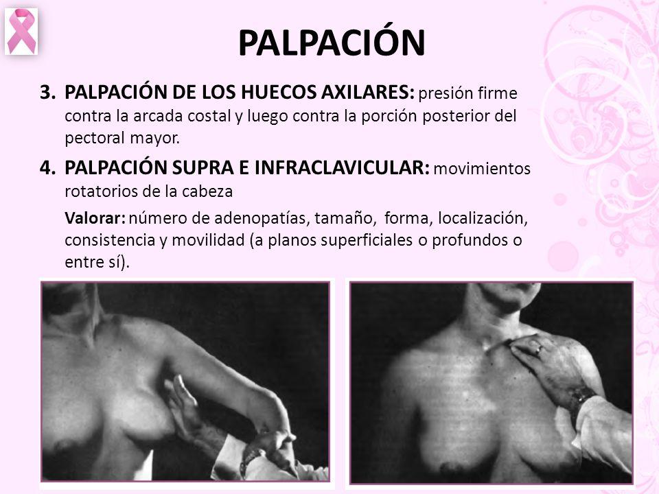 PALPACIÓN 3. PALPACIÓN DE LOS HUECOS AXILARES: presión firme contra la arcada costal y luego contra la porción posterior del pectoral mayor.