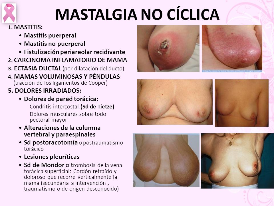MASTALGIA NO CÍCLICA Mastitis puerperal Mastitis no puerperal
