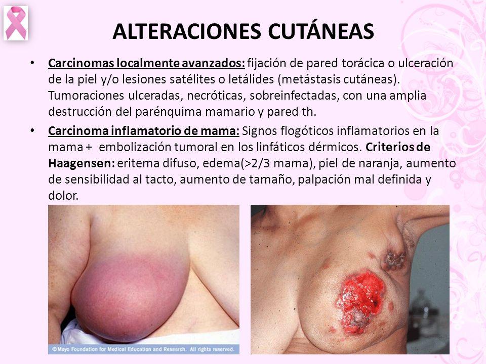 ALTERACIONES CUTÁNEAS