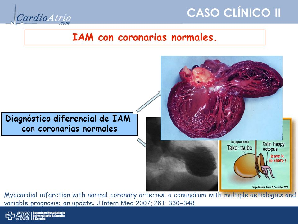 CASO CLÍNICO II IAM con coronarias normales. Sd. Tako-tsubo