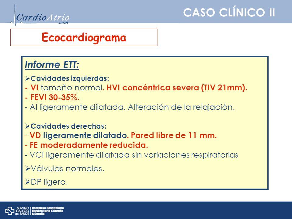 CASO CLÍNICO II Ecocardiograma Informe ETT: