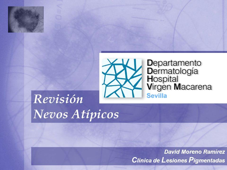 Revisión Nevos Atípicos Clínica de Lesiones Pigmentadas