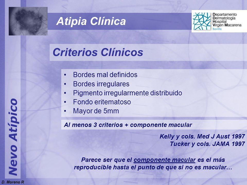 Atipia Clínica Criterios Clínicos Nevo Atípico Bordes mal definidos
