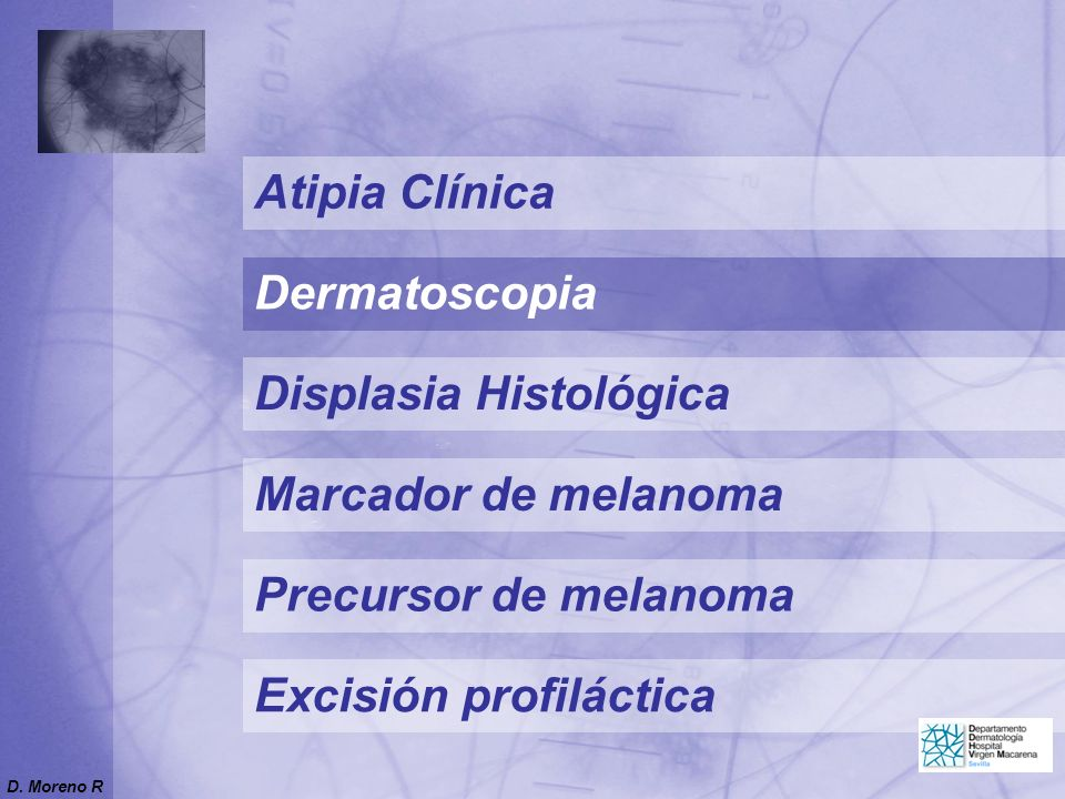 Displasia Histológica