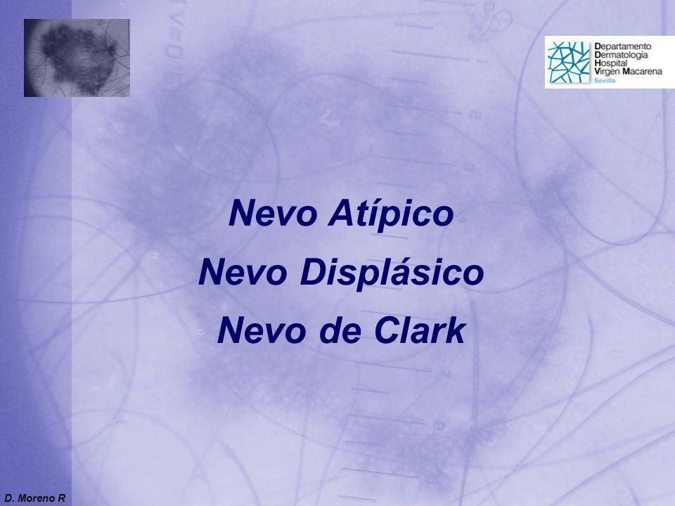 Nevo Atípico Nevo Displásico Nevo de Clark