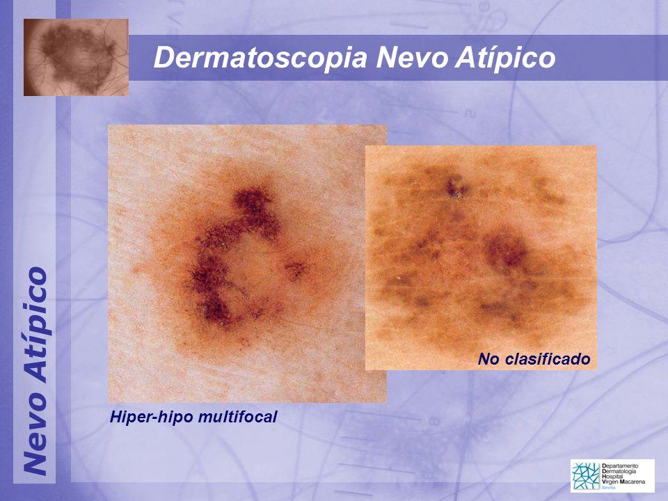 Dermatoscopia Nevo Atípico