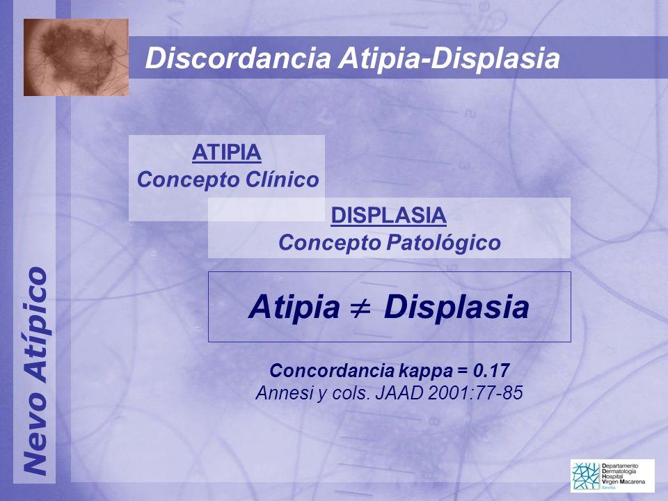 Atipia  Displasia Discordancia Atipia-Displasia Nevo Atípico ATIPIA