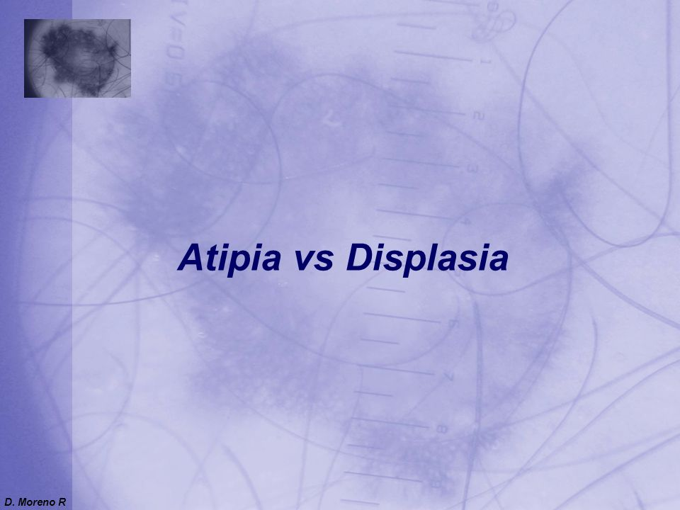 Atipia vs Displasia D. Moreno R