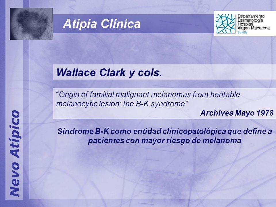 Atipia Clínica Nevo Atípico Wallace Clark y cols.