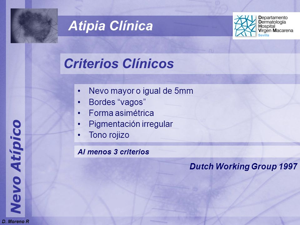 Atipia Clínica Criterios Clínicos Nevo Atípico