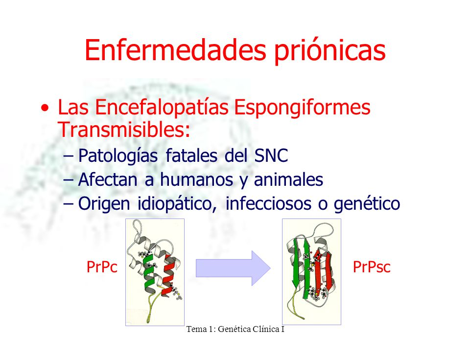 Enfermedades priónicas
