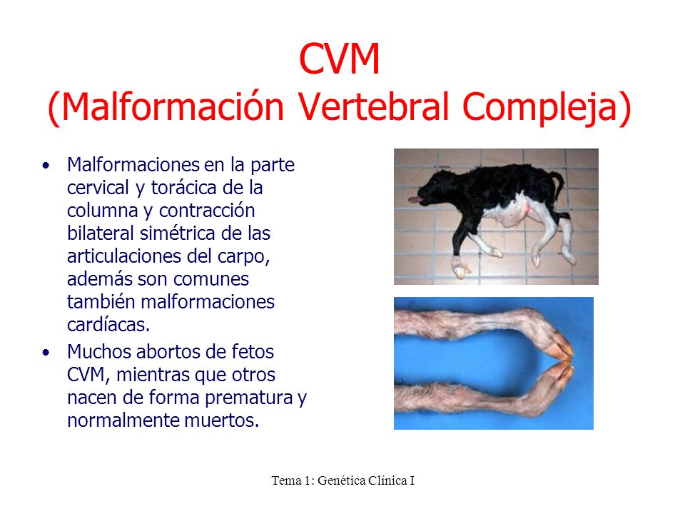 CVM (Malformación Vertebral Compleja)