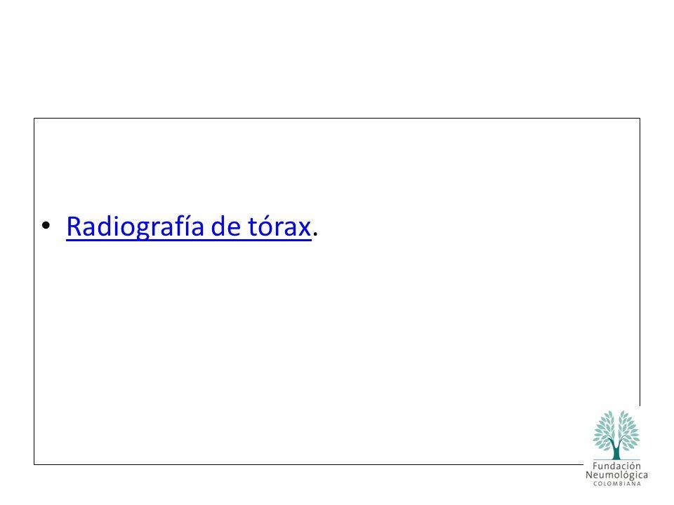 Radiografía de tórax.