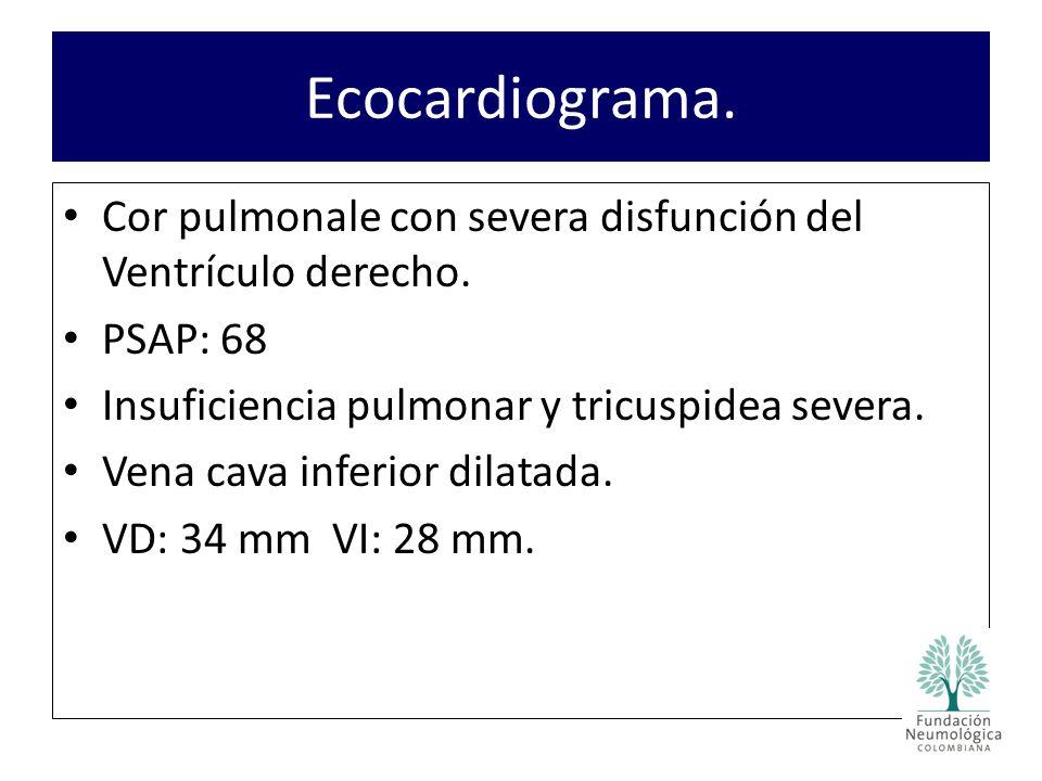 Ecocardiograma. Cor pulmonale con severa disfunción del Ventrículo derecho. PSAP: 68. Insuficiencia pulmonar y tricuspidea severa.
