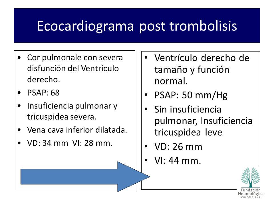 Ecocardiograma post trombolisis