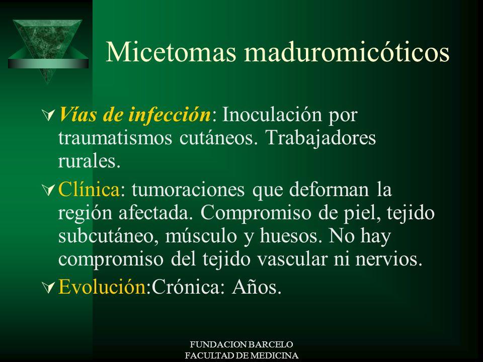 Micetomas maduromicóticos