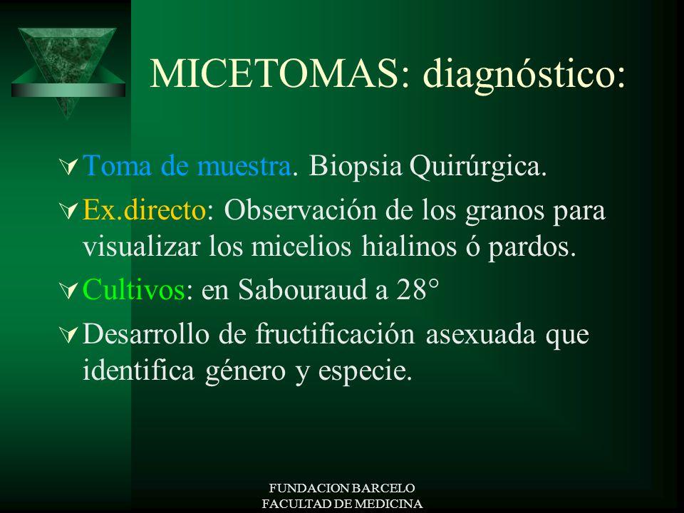 MICETOMAS: diagnóstico: