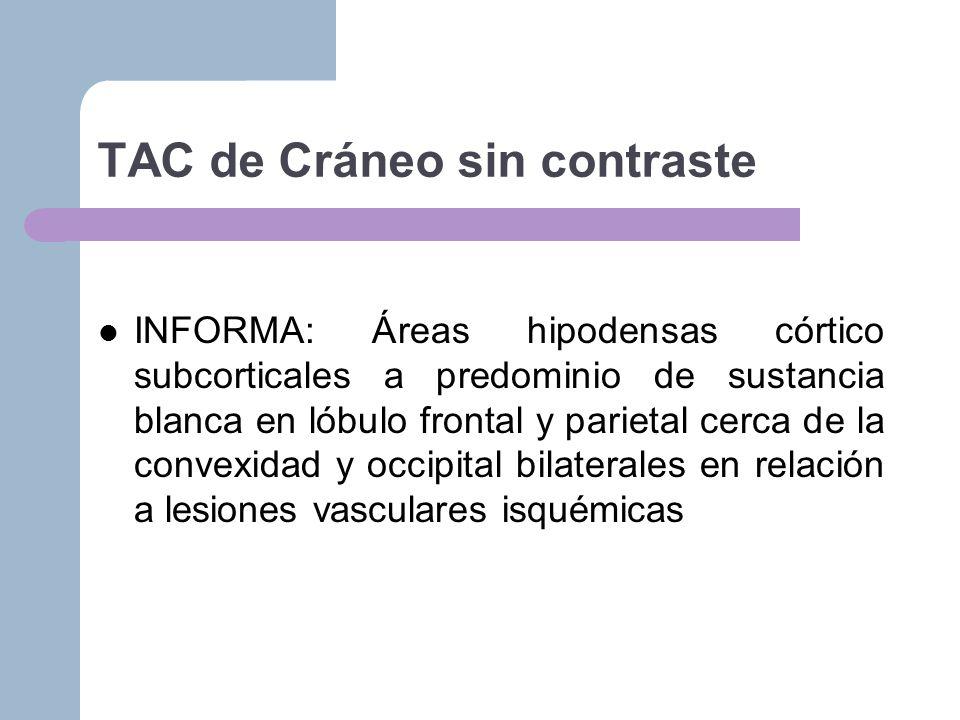 TAC de Cráneo sin contraste
