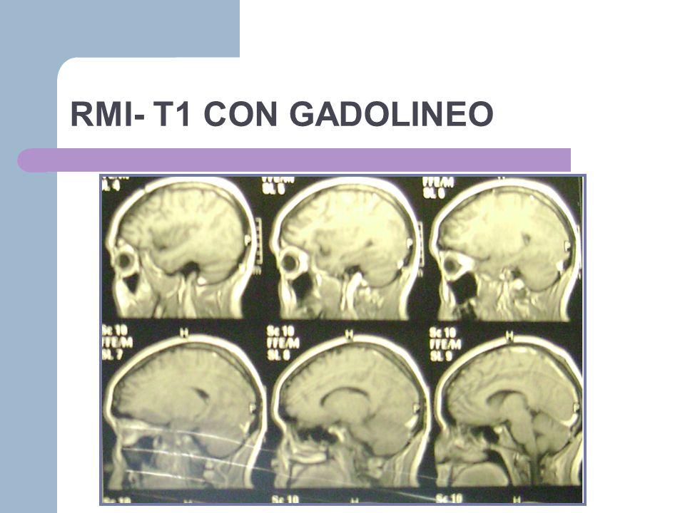 RMI- T1 CON GADOLINEO