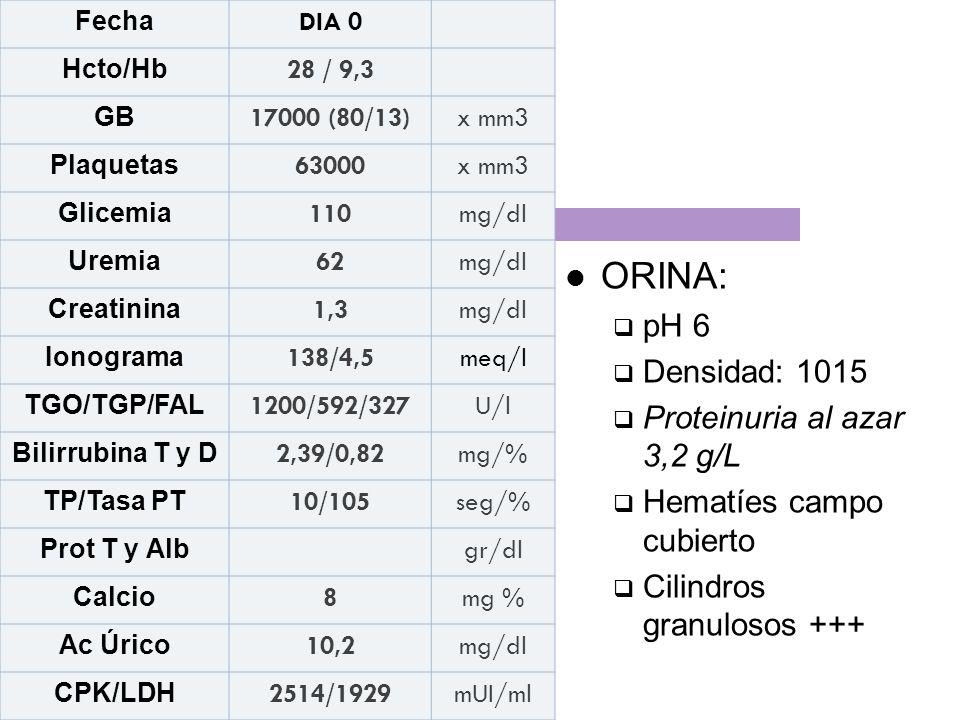 ORINA: pH 6 Densidad: 1015 Proteinuria al azar 3,2 g/L