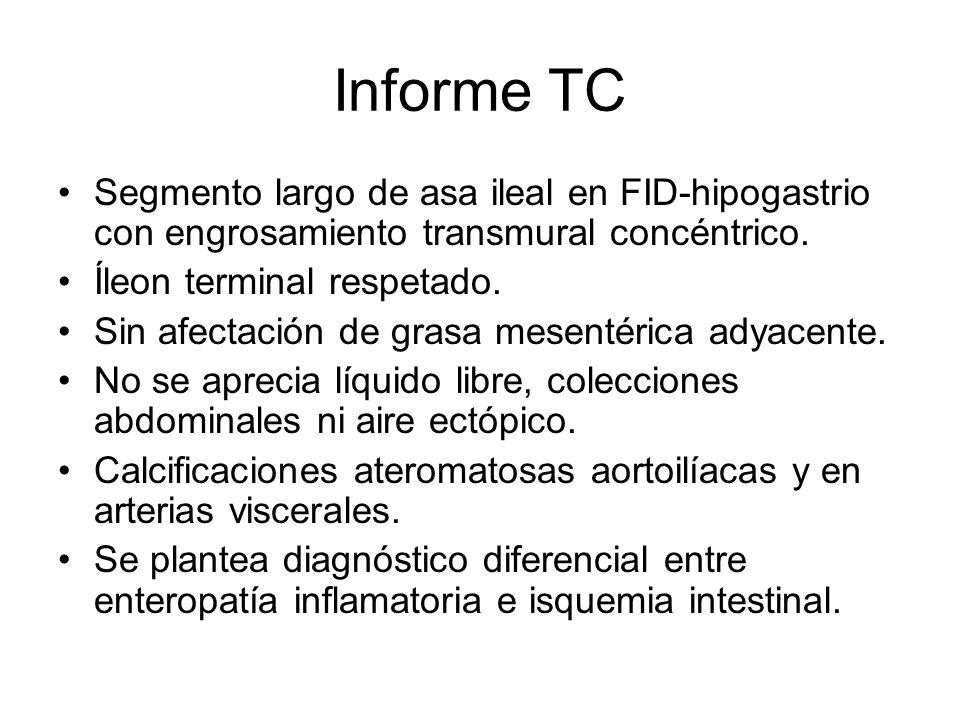 Informe TC Segmento largo de asa ileal en FID-hipogastrio con engrosamiento transmural concéntrico.