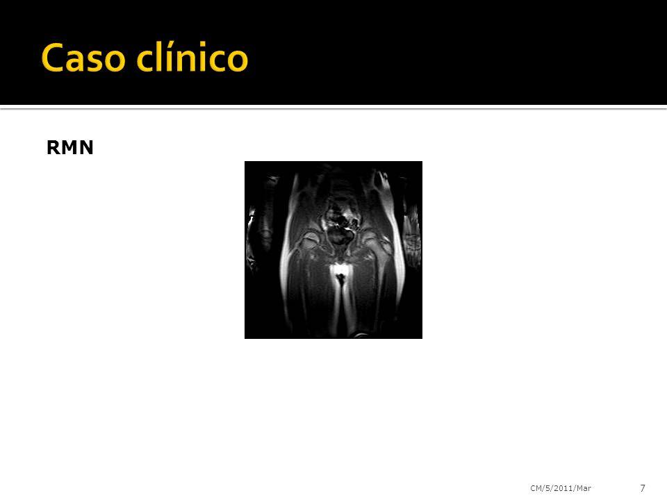 Caso clínico RMN CM/5/2011/Mar