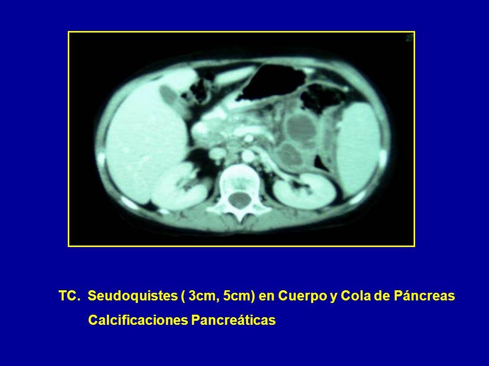 TC. Seudoquistes ( 3cm, 5cm) en Cuerpo y Cola de Páncreas