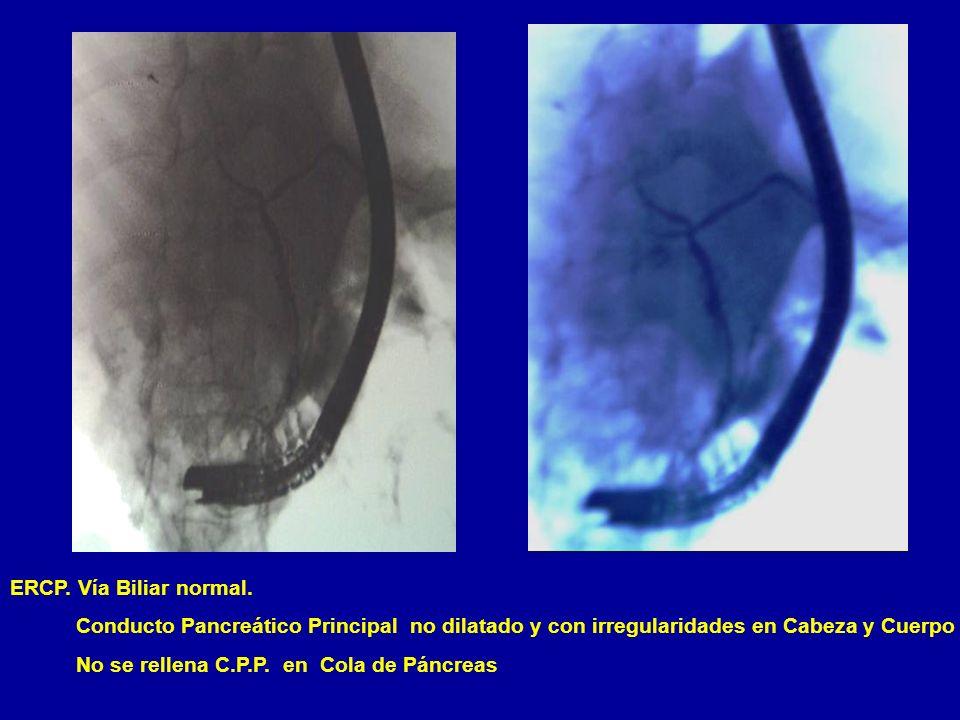 ERCP. Vía Biliar normal. Conducto Pancreático Principal no dilatado y con irregularidades en Cabeza y Cuerpo.