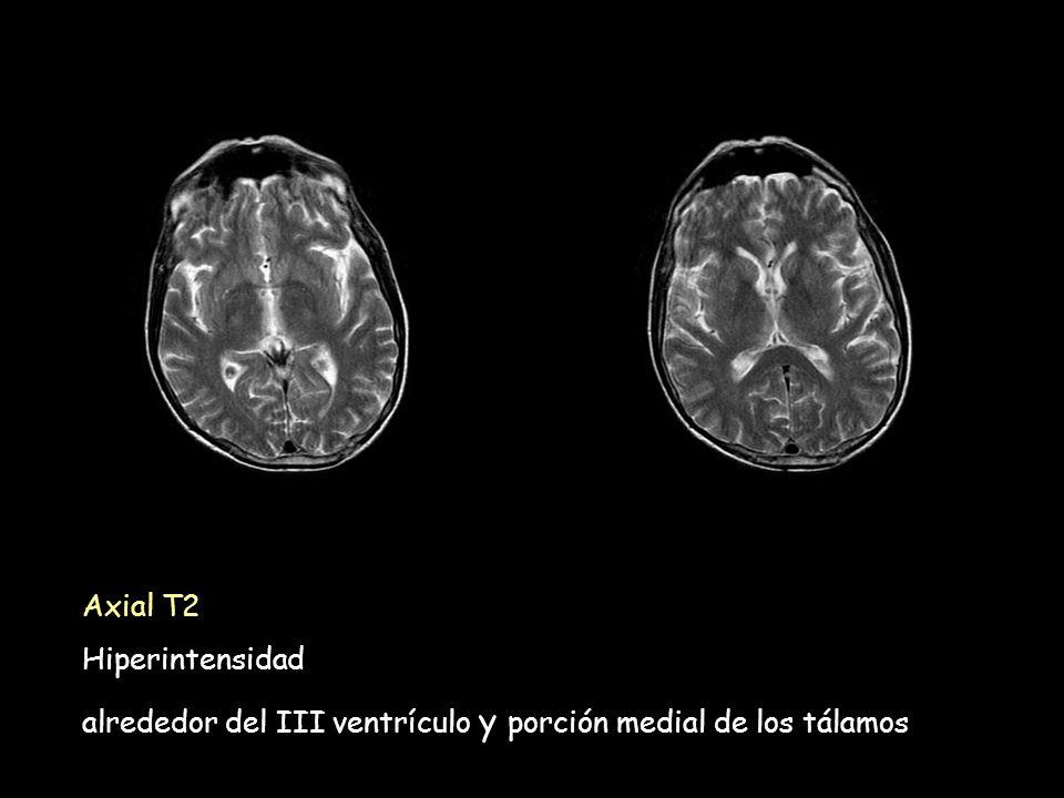 Axial T2 Hiperintensidad alrededor del III ventrículo y porción medial de los tálamos