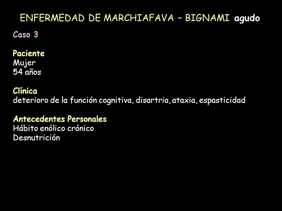 ENFERMEDAD DE MARCHIAFAVA – BIGNAMI agudo