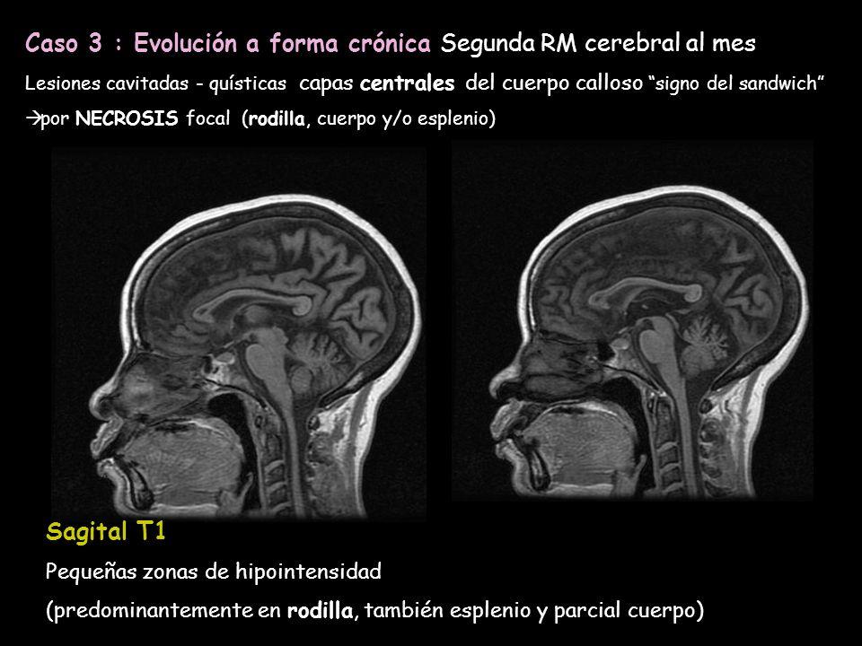 Caso 3 : Evolución a forma crónica Segunda RM cerebral al mes