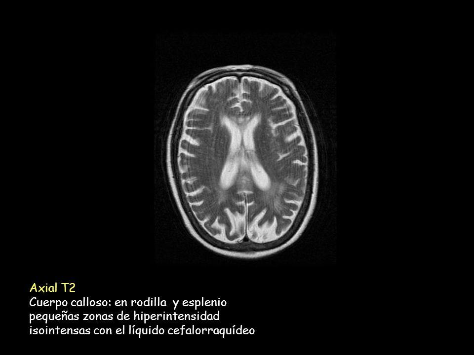 Axial T2 Cuerpo calloso: en rodilla y esplenio. pequeñas zonas de hiperintensidad.