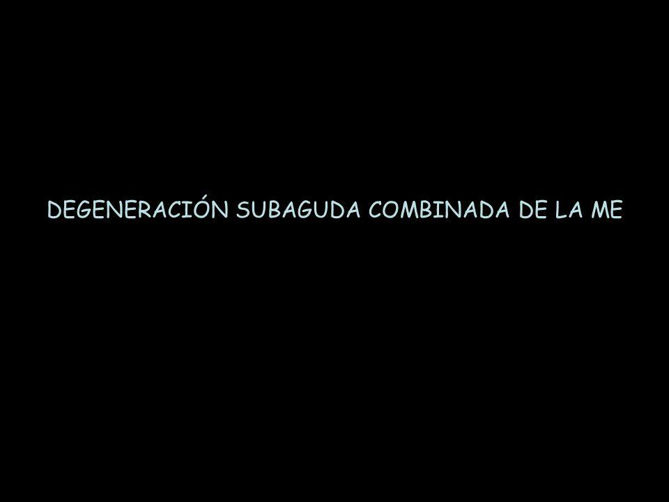 DEGENERACIÓN SUBAGUDA COMBINADA DE LA ME
