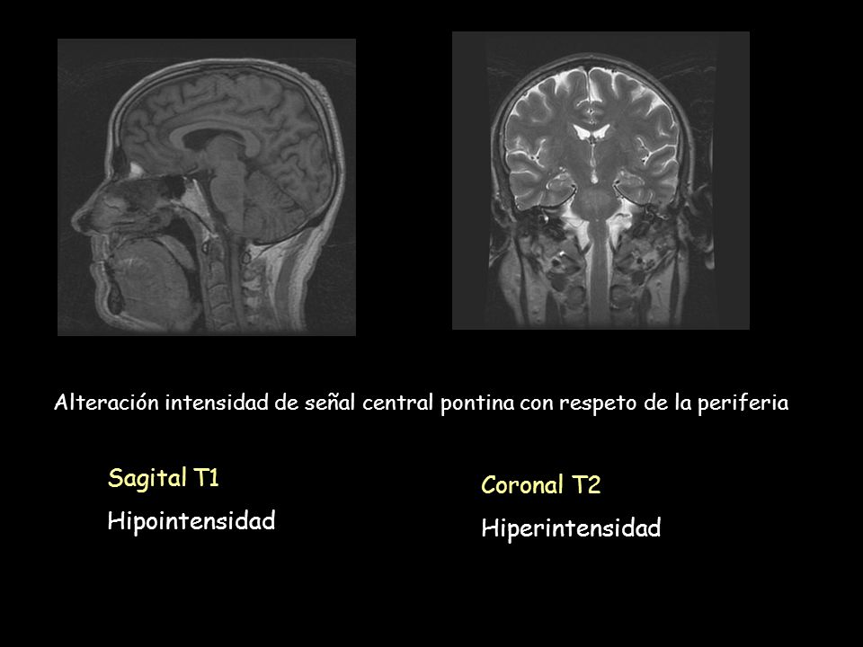 Sagital T1 Coronal T2 Hipointensidad Hiperintensidad