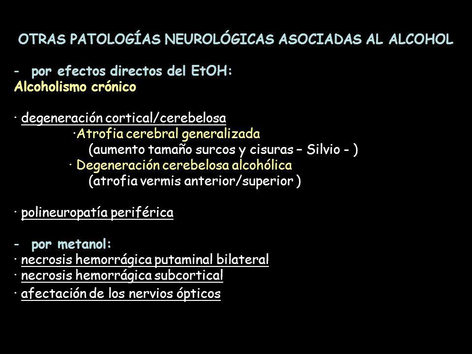 OTRAS PATOLOGÍAS NEUROLÓGICAS ASOCIADAS AL ALCOHOL