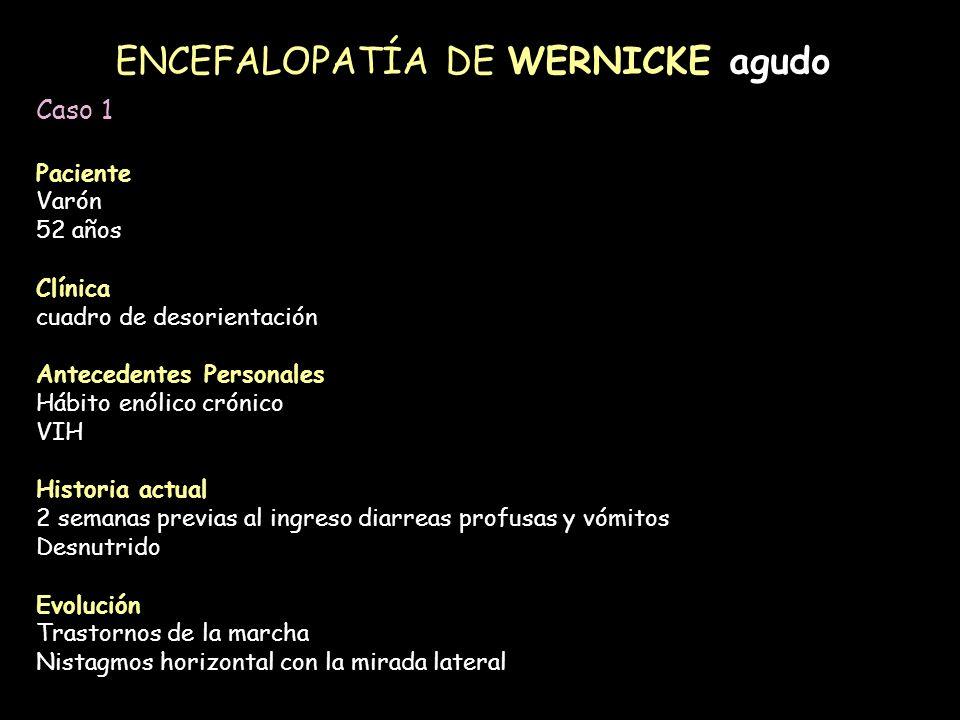 ENCEFALOPATÍA DE WERNICKE agudo