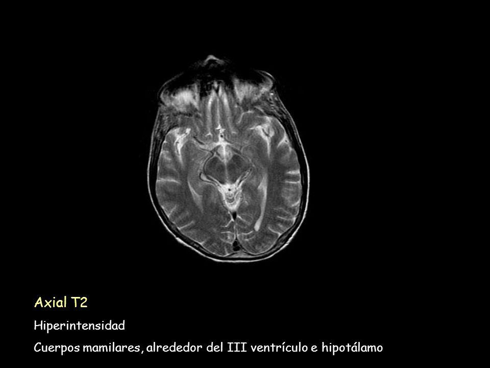 Axial T2 Hiperintensidad