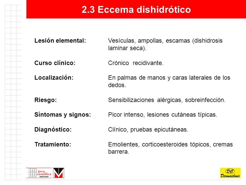 2.3 Eccema dishidrótico Lesión elemental: Vesículas, ampollas, escamas (dishidrosis laminar seca).