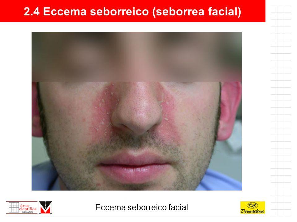 2.4 Eccema seborreico (seborrea facial)