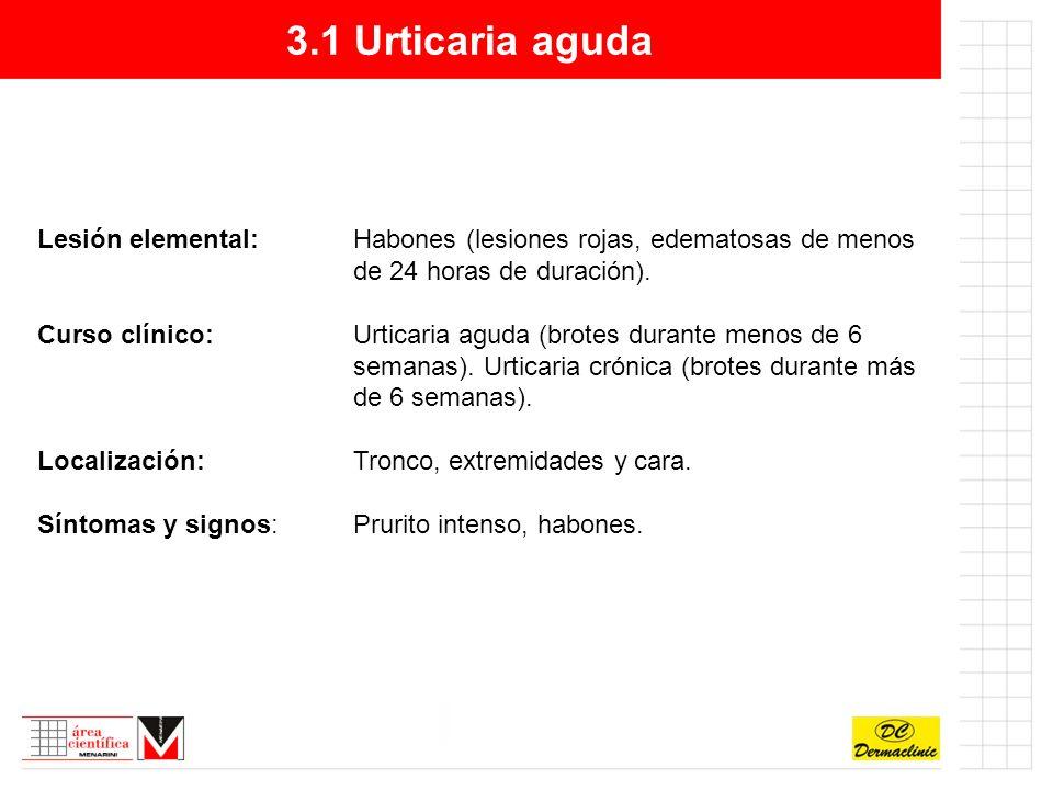 3.1 Urticaria aguda Lesión elemental: Habones (lesiones rojas, edematosas de menos de 24 horas de duración).