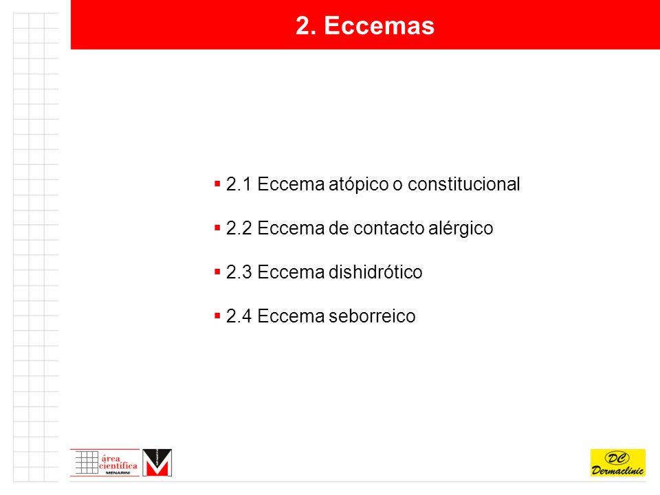2. Eccemas 2.1 Eccema atópico o constitucional
