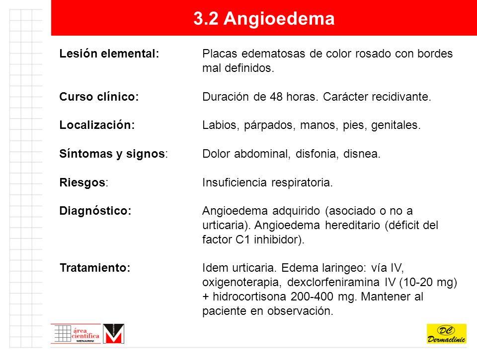 3.2 Angioedema Lesión elemental: Placas edematosas de color rosado con bordes mal definidos.